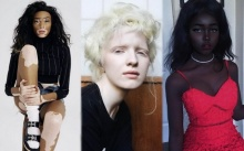 เปิดภาพ!!! ชายหญิงผู้ทรงเสน่ห์ที่ไม่ซ้ำใคร ด้วยสีผิวที่โดดเด่นเป็นเอกลักษณ์!